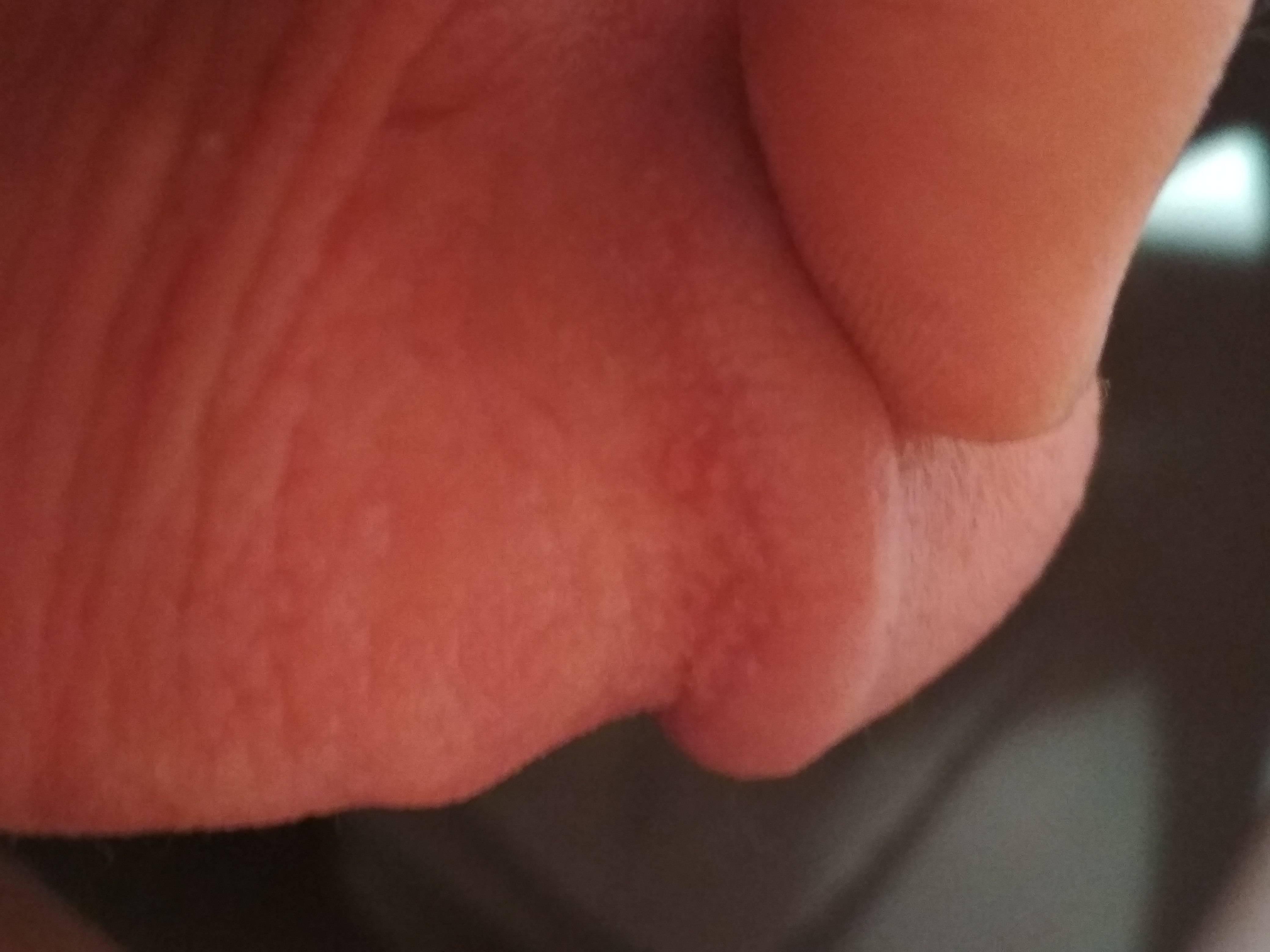 Белые точки на головке полового члена: причины, симптомы и лечение