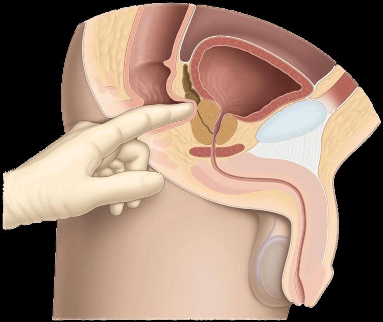Как проводится обследование предстательной железы?
