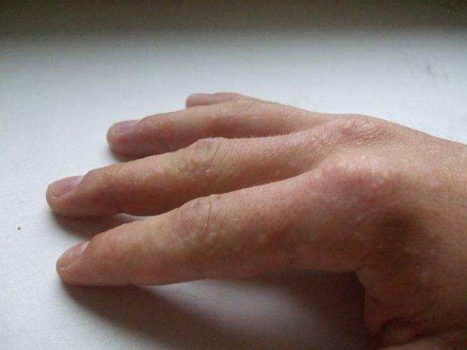 Прыщи на руках и ногах — причины и лечение