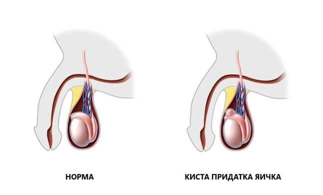 Уплотнение в мошонке: причины и способы самодиагностики