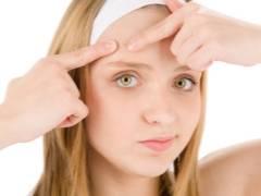 Прыщи у подростка: все способы обрести идеальное лицо