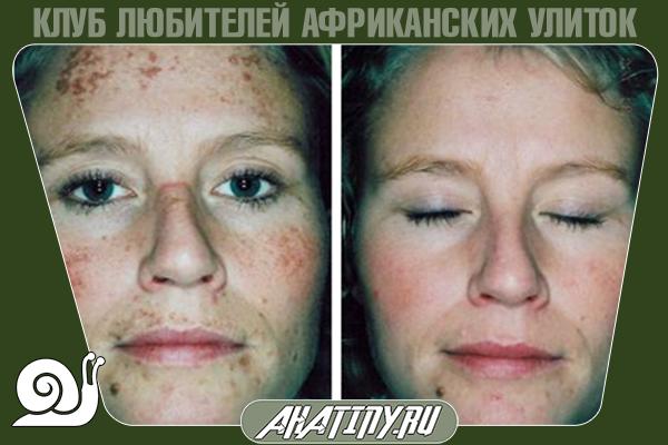Улитка ахатин в косметологии, что скрывают косметологи