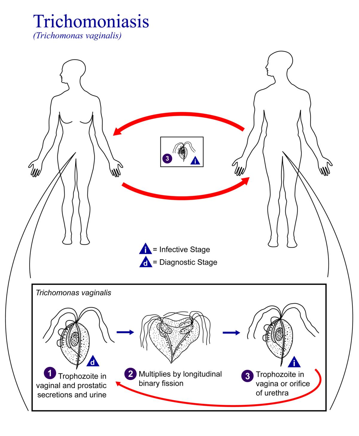 Трихомонады в мазке: что это такое и как лечить