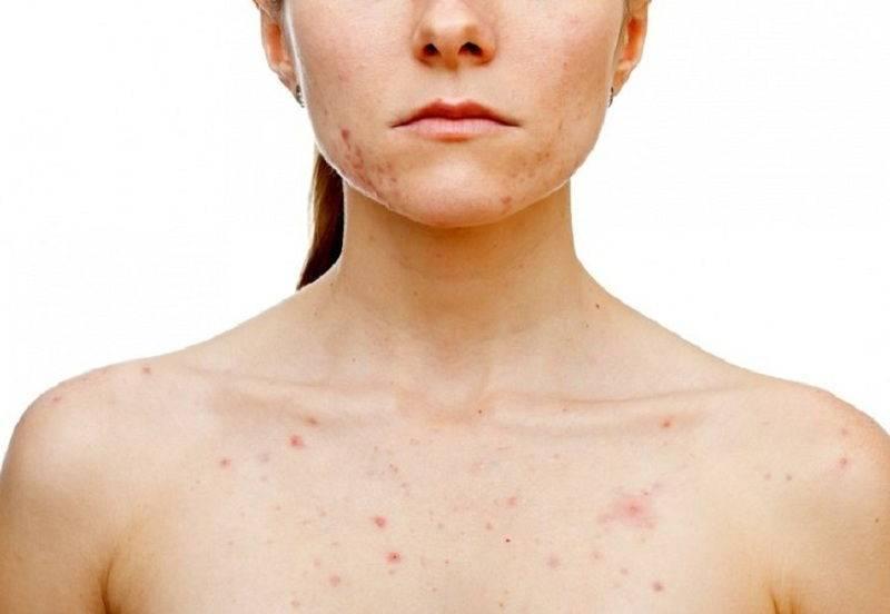 Вирус герпеса у детей: симптомы и лечение заболевания