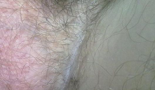 Шелушение на машонке у мужчин