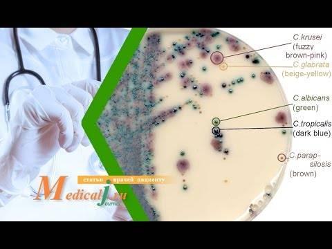 Как лечить белый налет на головке и крайней плоти?