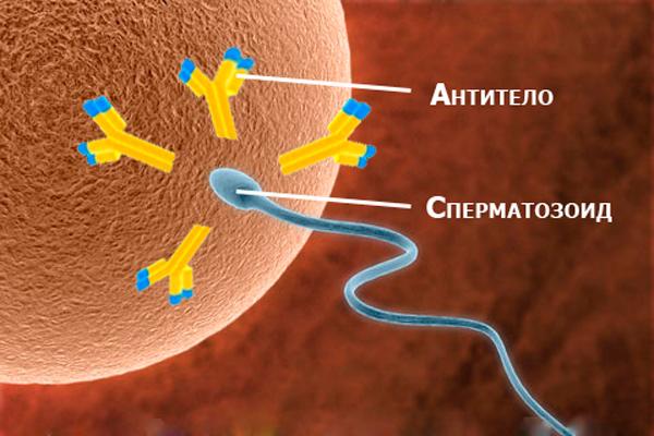 Агглютинация сперматозоидов: как лечить опасный процесс