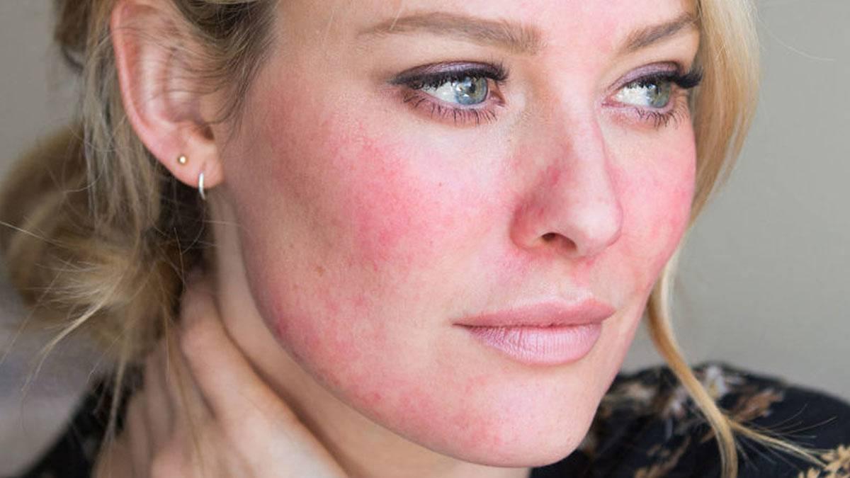 Папуло-пустулезная форма акне— симптомы, причины и как лечить