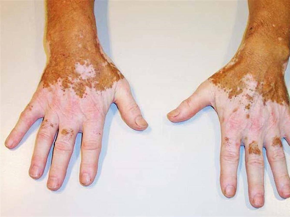 Витилиго. причины, симптомы, признаки, диагностика и лечение патологии.