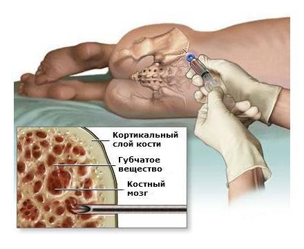 Меланома - симптомы, виды. меланома у детей. прогнозы. диагностика и лечение