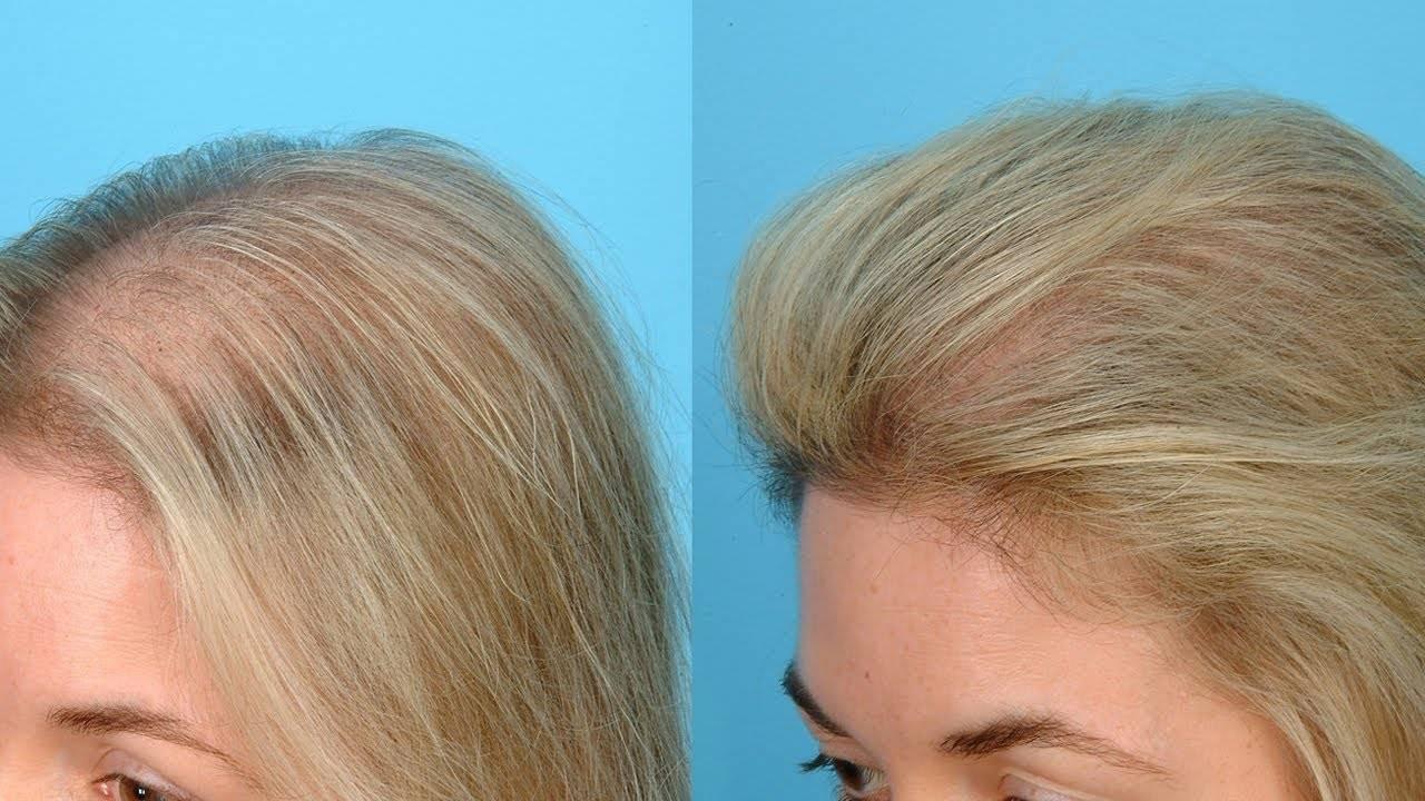 Как быстро и без труда отрастить волосы мужчине?