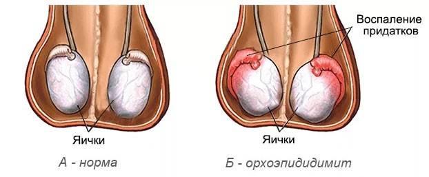 Эпидидимит (воспаление придатка яичка): причины, признаки, как лечить