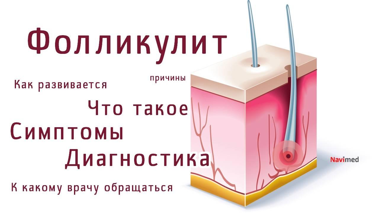 Эффективное лечение фолликулита: антибиотики, мази, шампуни, домашние народные средства