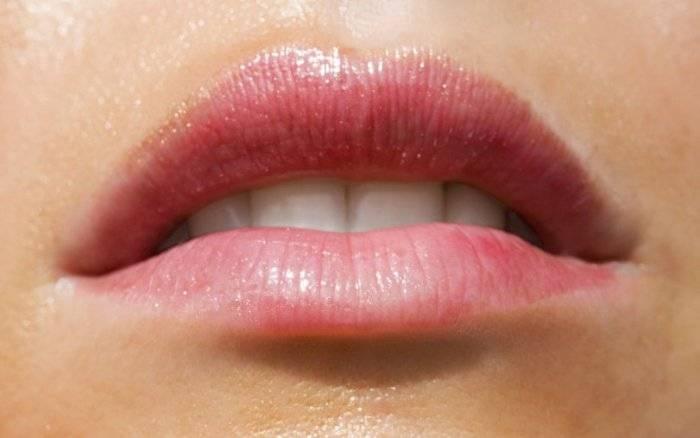 Заеды в уголках рта: причины и лечение у взрослых