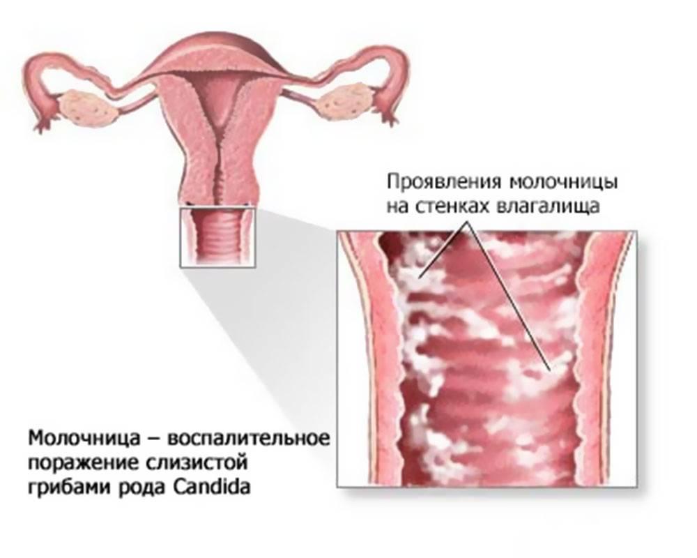 Симптомы и методы лечения в домашних условиях трихомониаза у мужчин
