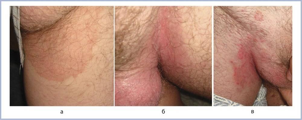 Паховая эпидермофития или грибок в паху