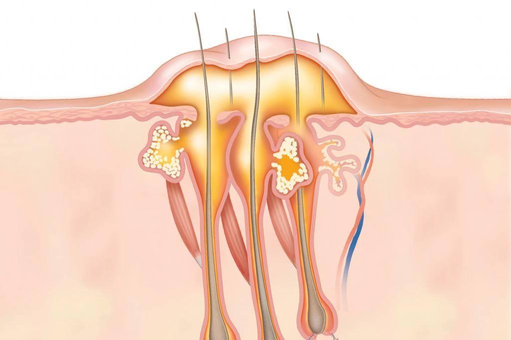 Чем отличается карбункул от фурункула, гидраденита, абсцесса кожи и флегмоны