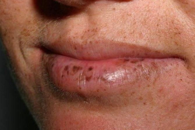 О чем говорят белые точки на губах и что с ними делать