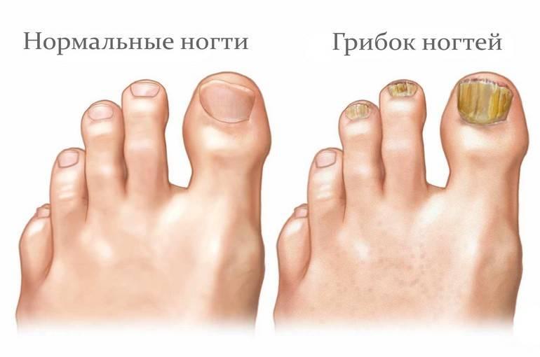 Грибок ступней: фото симптомов, и чем лечить