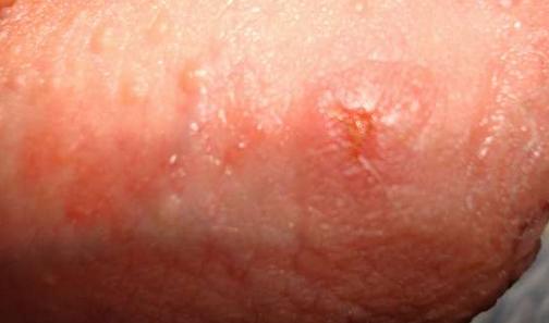Сыпь на головке у мужчин: фото, возможные болезни, лечение
