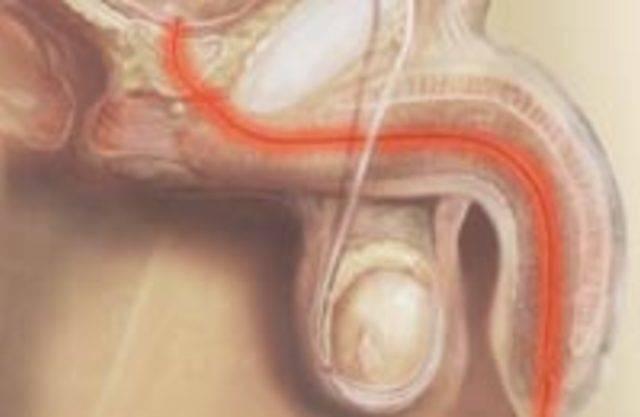 Мочеиспускание у мужчин с кровью: причины, способы лечения