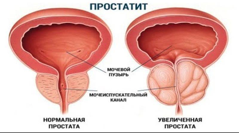 Рак простаты. причины, симптомы, стадии, лечение заболевания. операция при раке простаты.