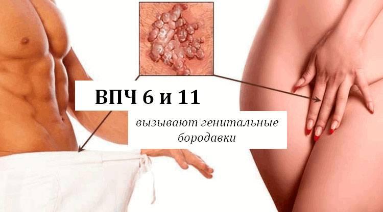 Впч низкого онкогенного риска у женщин