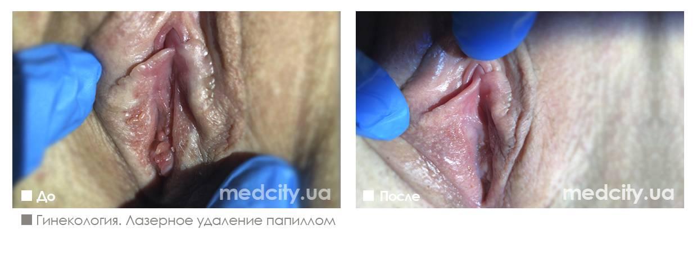 Генитальные папилломы: какую опасность несут, симптомы и необходимость лечения
