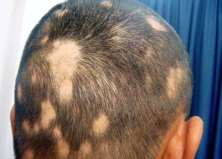 Алопеция у женщин: причины, симптомы и лечение в домашних условиях