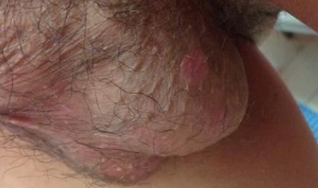 Из-за чего у мужчин шелушится кожа на яичках?