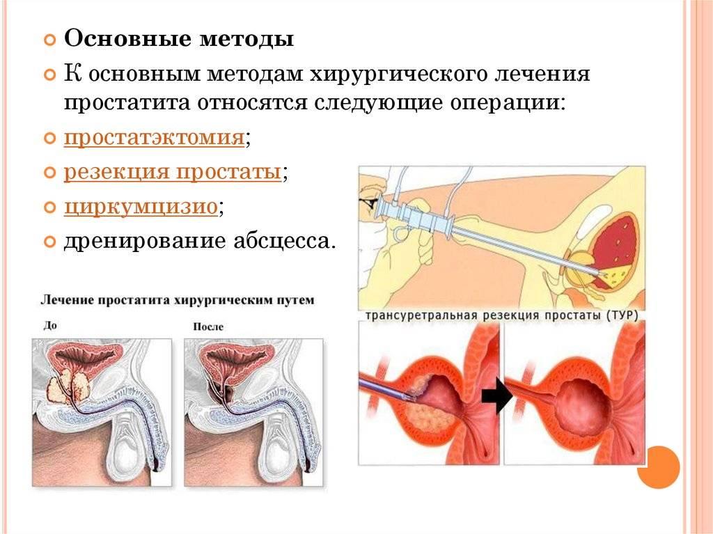 признаки гнойного простатита у мужчин