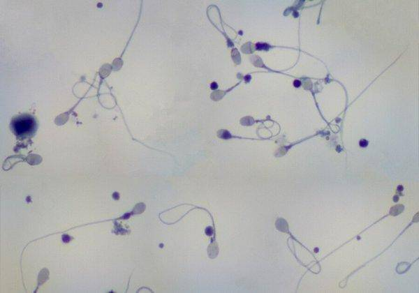 Эффективное лечение астенотератозооспермии