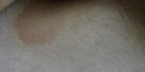 Коричневые пятна в паху у мужчин: фото, причины, лечение