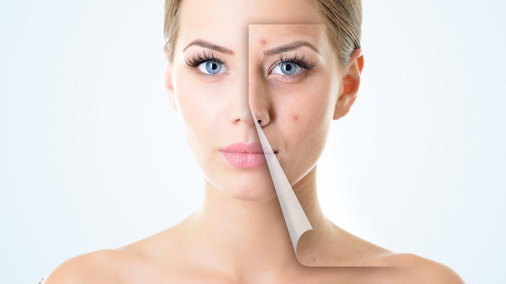 Как быстро вылечить рану от прыща на лице в домашних условиях