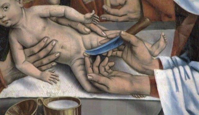 Циркумцизия - обрезание у мужчин