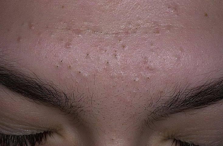 Как избавиться от черных точек на щеках?
