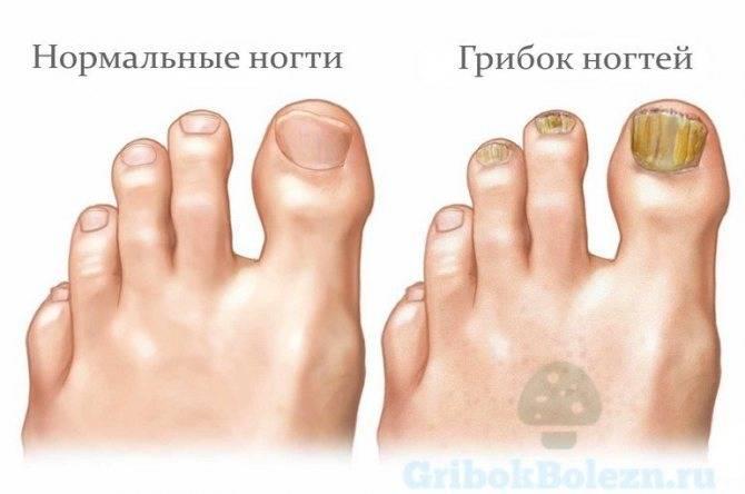 """""""грибок ногтей на руках — опасность, первые признаки и схемы лечения"""""""