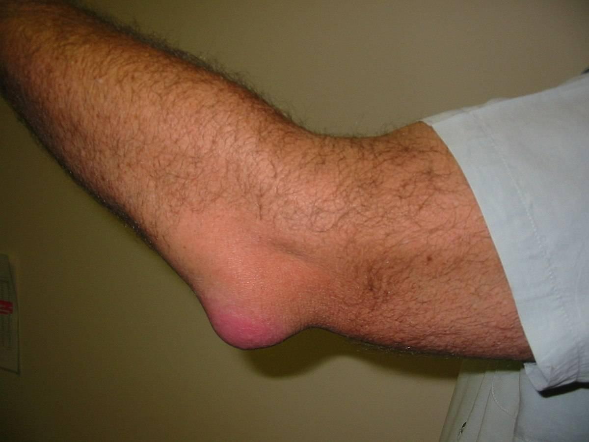Чирей на ноге: причины появления, симптомы, лечение