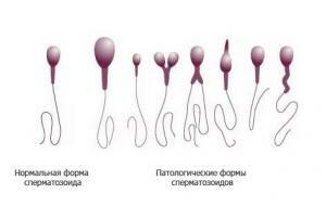 Как повысить спермограмму у мужчин