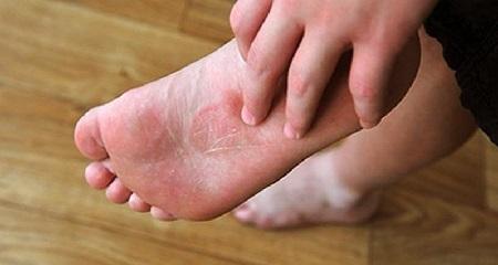 Грибок стопы – разбор «тихого», но грозного заболевания