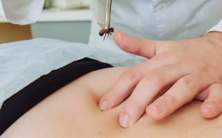 Схемы точек ужаливания в апитерапии