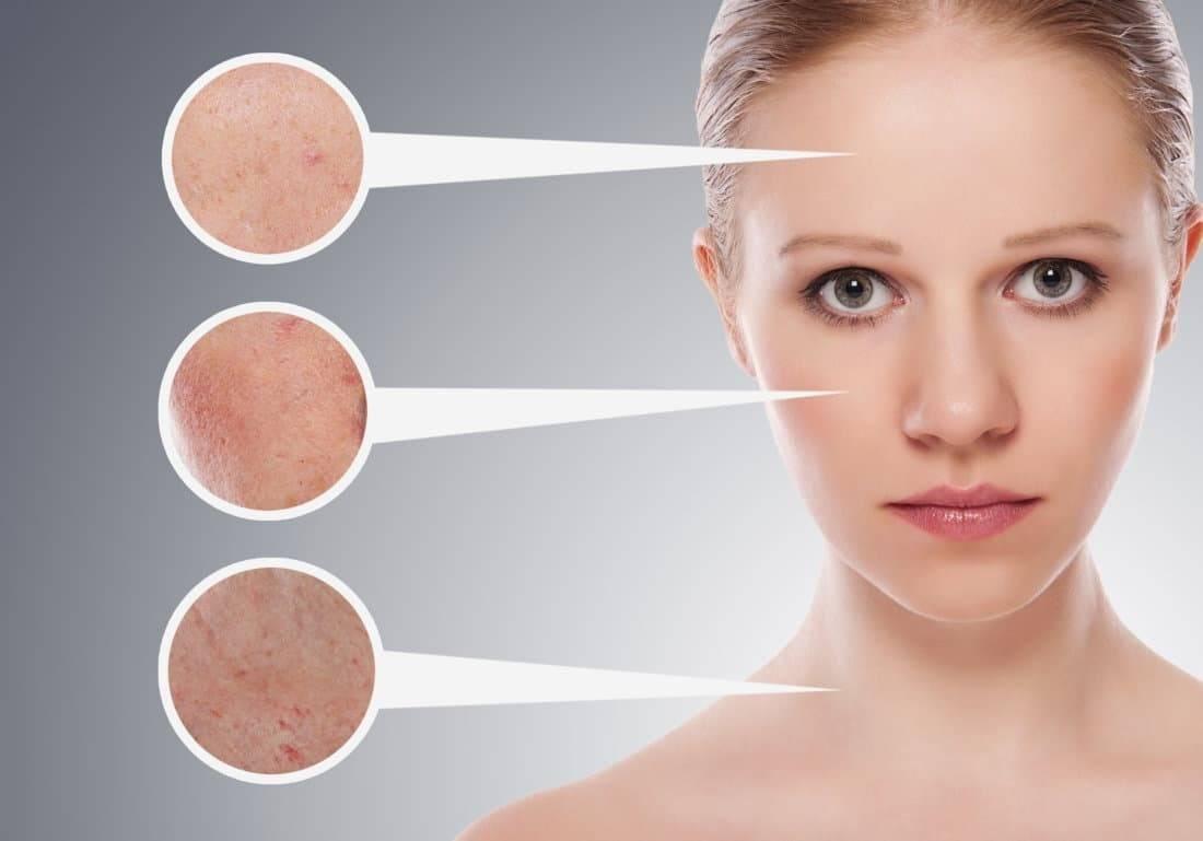 Жирный лоб причины у мужчин. причины жирной кожи