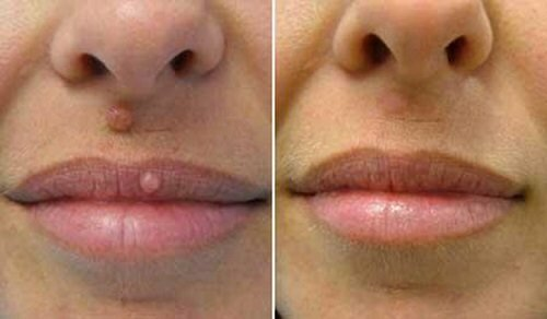 Бородавка на губе — угроза здоровью и красоте!