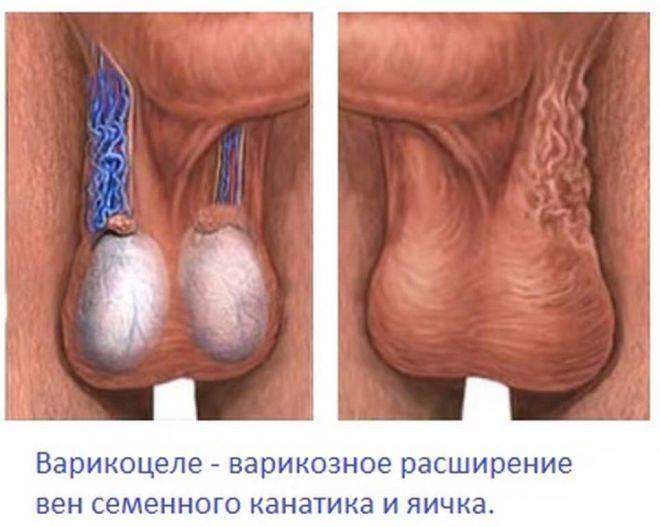 Лечение без операции варикоцеле у мужчин и подростков