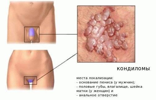 Папилломы на спине у мужчин