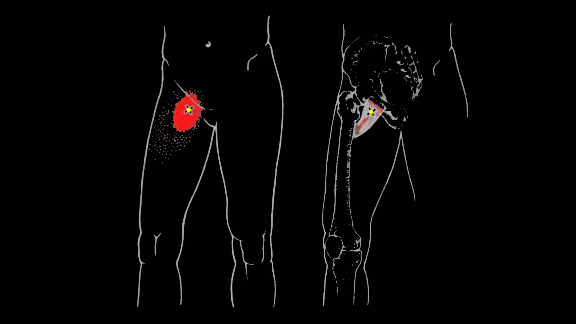 Уплотнение на внешней стороне бедра. почему возникает опухоль на внутренней стороне бедра. распространенные причины у женщины