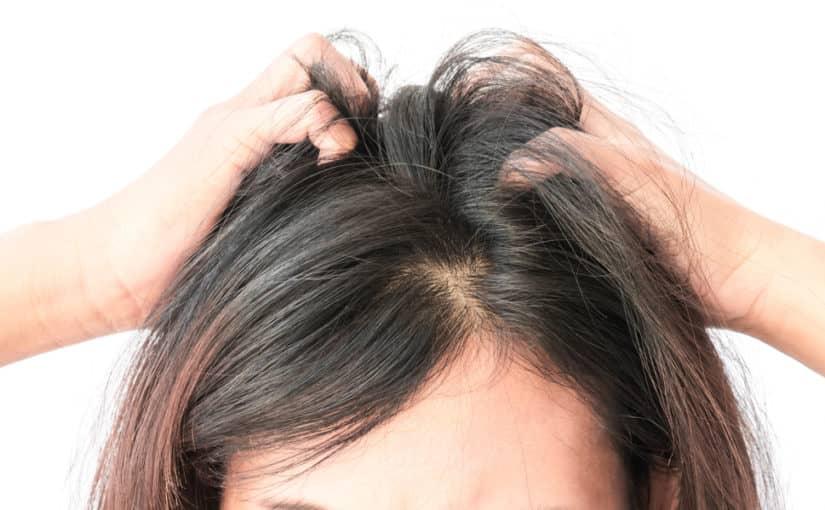 Лечение себореи на голове