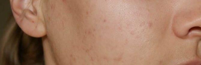 Мазь от прыщей: мазь ям как эффективное средство от кожных болезней