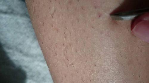 Что означает черная точка или пятно на ногте? причины появления, способы лечения, фото