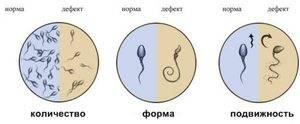 В спермограмме нормозооспермия с агрегацией и агглютинацией, что значит этот диагноз для мужчины